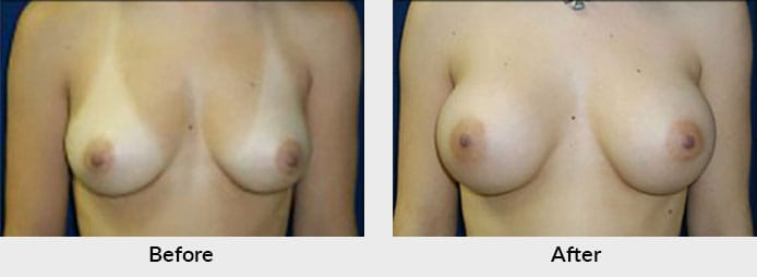 Breast Augmentation Before After Photos Charlotte, NC