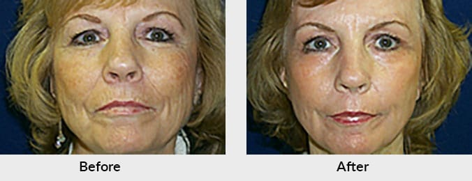 Laser Skin Resurfacing Before & After Photo in Charlotte, NC