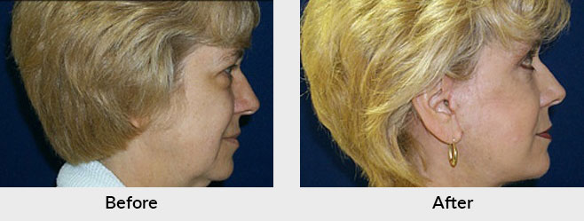 Facelift Before After Photos in Charlotte, NC