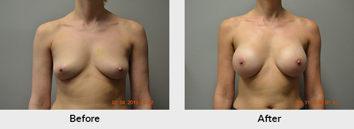 Breast Reconstruction Charlotte NC