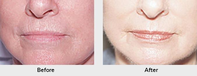 Laser Skin Resurfacing in Charlotte, NC