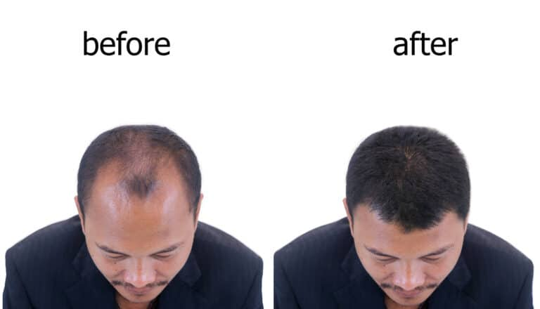 Hair transplants in Charlotte, NC