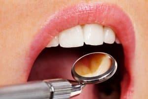 Preventative Dentistry in Charlotte, NC
