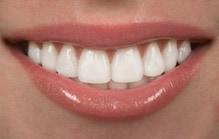 After Sylvania/Toledo patient from Teeth Bonding at Dental health Associates