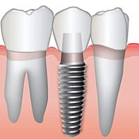 Toledo Dental Implants