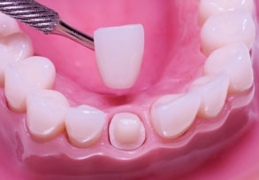 cosmetic_dentistry_sm