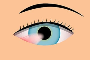 Pterygium Treatment in San Bernardino