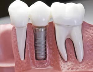 Dental Implant Recovery and Results in Urbandale, IA
