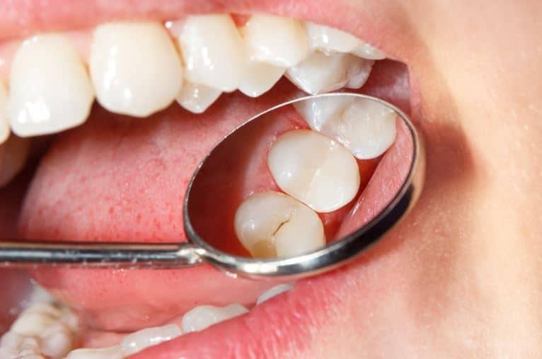 Dental Sealants in Des Moines, IA