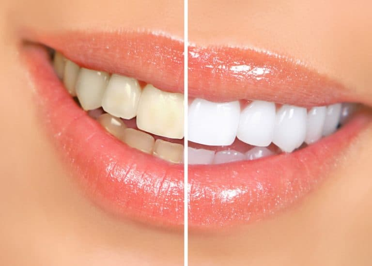 Opalescence Teeth Whitening in Des Moines, IA