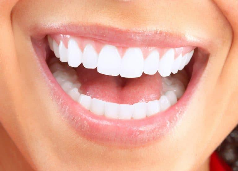 Dental Bonding in Des Moines, IA
