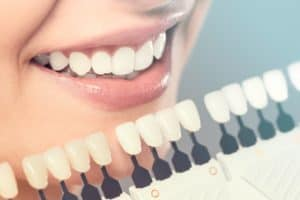 Dental Veneers in Urbandale, IA