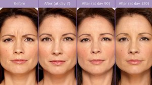 Botox Injection Before After Image