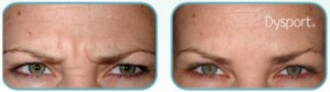 Dysport Effect on Frown Lines and Eyebrows