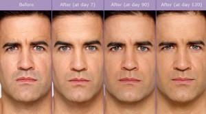 Botox Male Patient