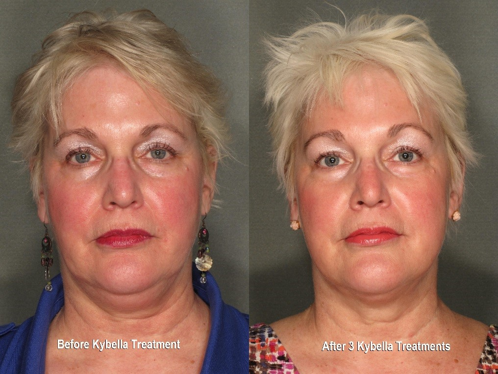 Kybella Results Before & After