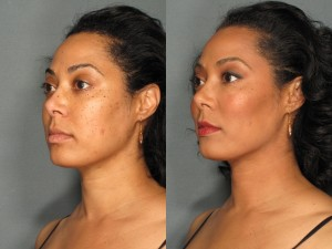 Patient before & after Radiesse® in Portland, OR