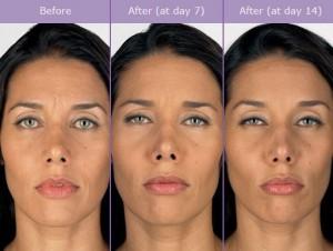 Botox-Capture