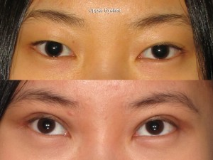 Portland Blepharoplasty surgeon