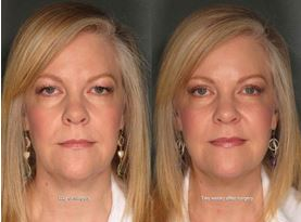 Before and After Blepharoplasty in Portland