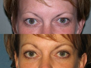 Before & After Browlift