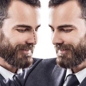 Male Model on Portland Face Doctor Male Rhinoplasty Page