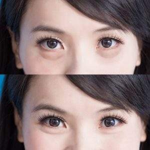Before/ After Asian Eyelid Surgery Results
