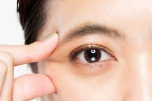 Model on Portland Face Doctor Asian Blepharoplasty Page