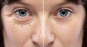 Patient Before and After Photos of Lower Eyelid Surgery