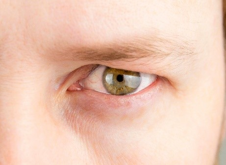 Recovery from Male Upper Eyelid Surgery