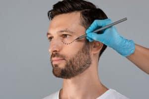 Lower Eyelid Surgery for Men in Portland