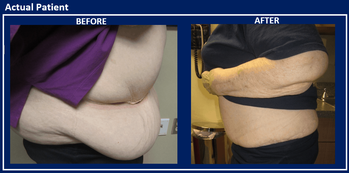 Before and After Panniculectomy Reno