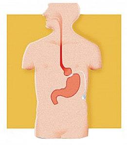 Laparoscopic Adjustable Gastric Band