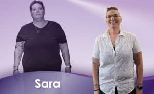 Before and After Weight Loss Sara
