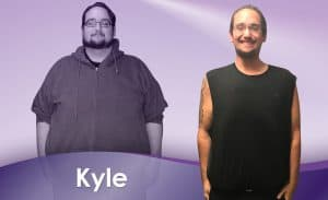 Before and After Weight Loss Kyle