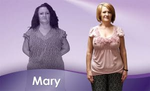 Before and After Weight Loss Mary