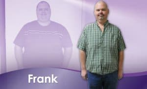Before and After Weight Loss Frank