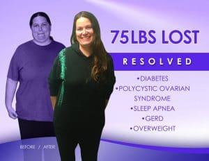 before-and-after-weight-loss-surgery-what-to-expect-sasse-surgical-reno