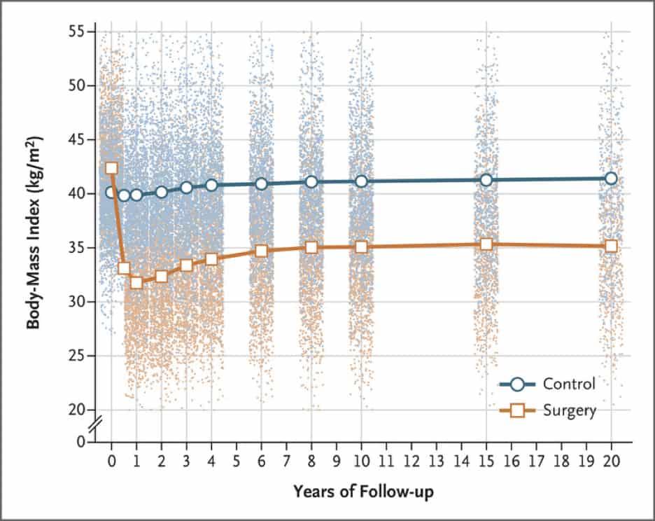 sasse-surgical-body-mass-index