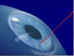 Laser eye surgery Glendale, AZ