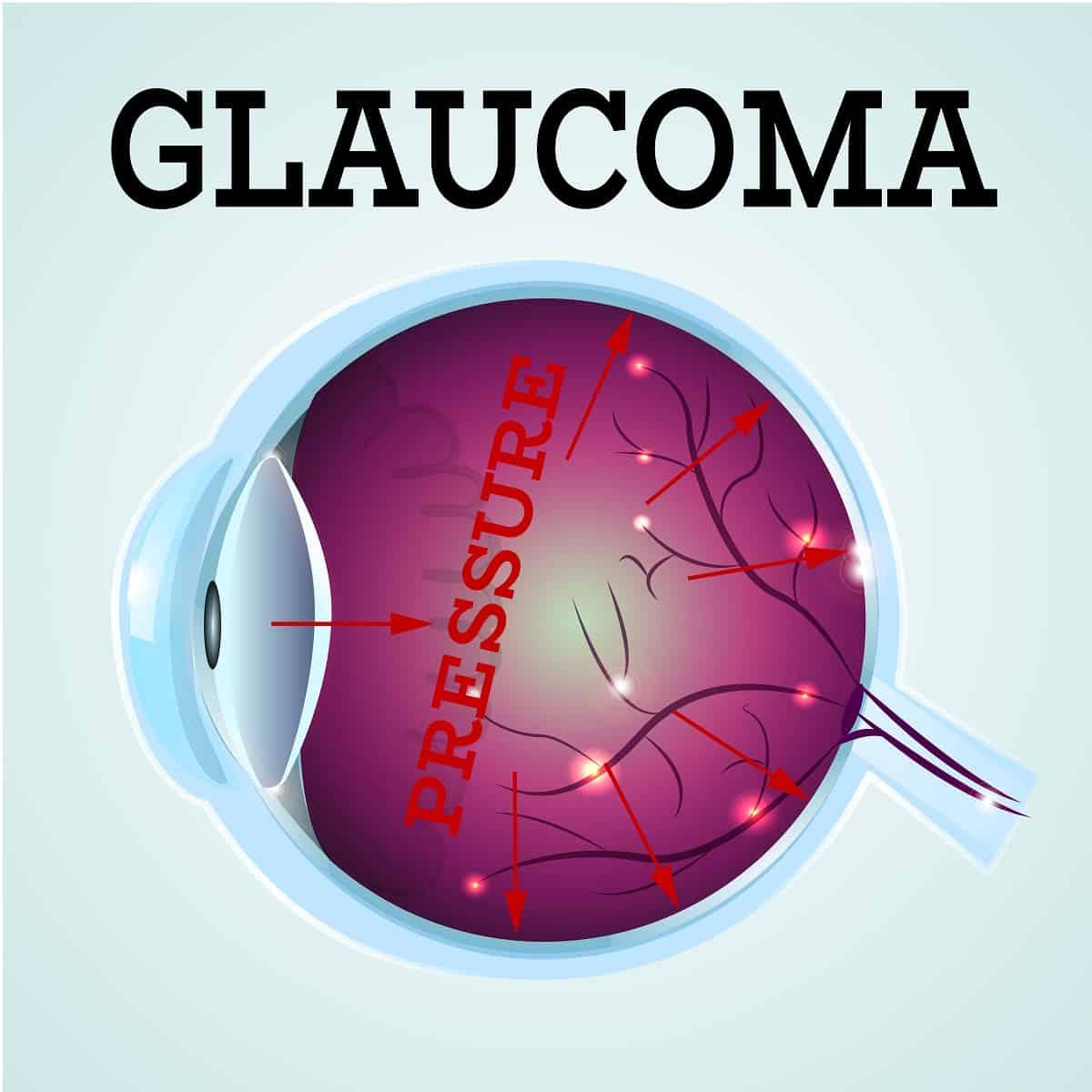 Glaucoma detection Scottsdale & Glendale