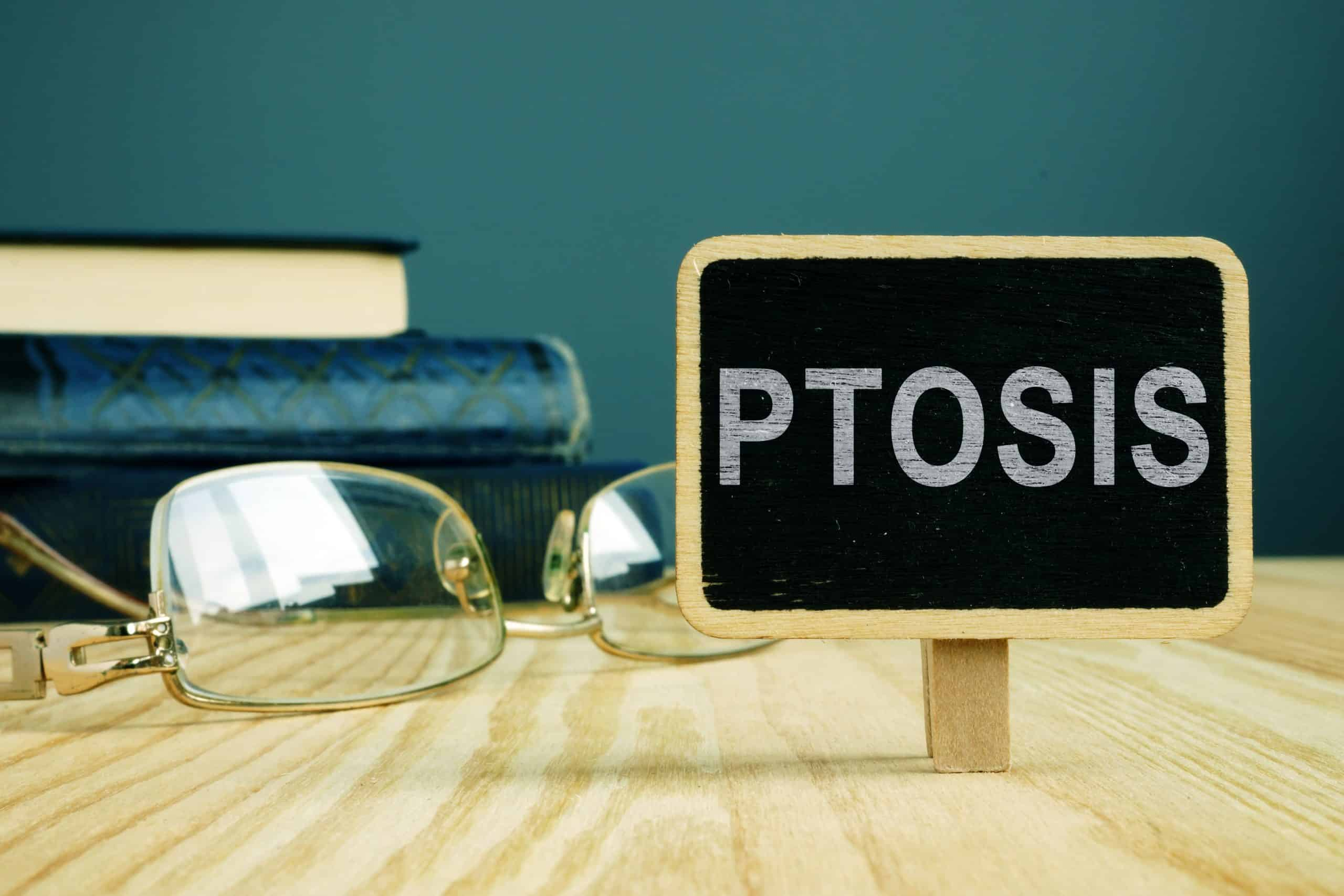 Ptosis in Adults