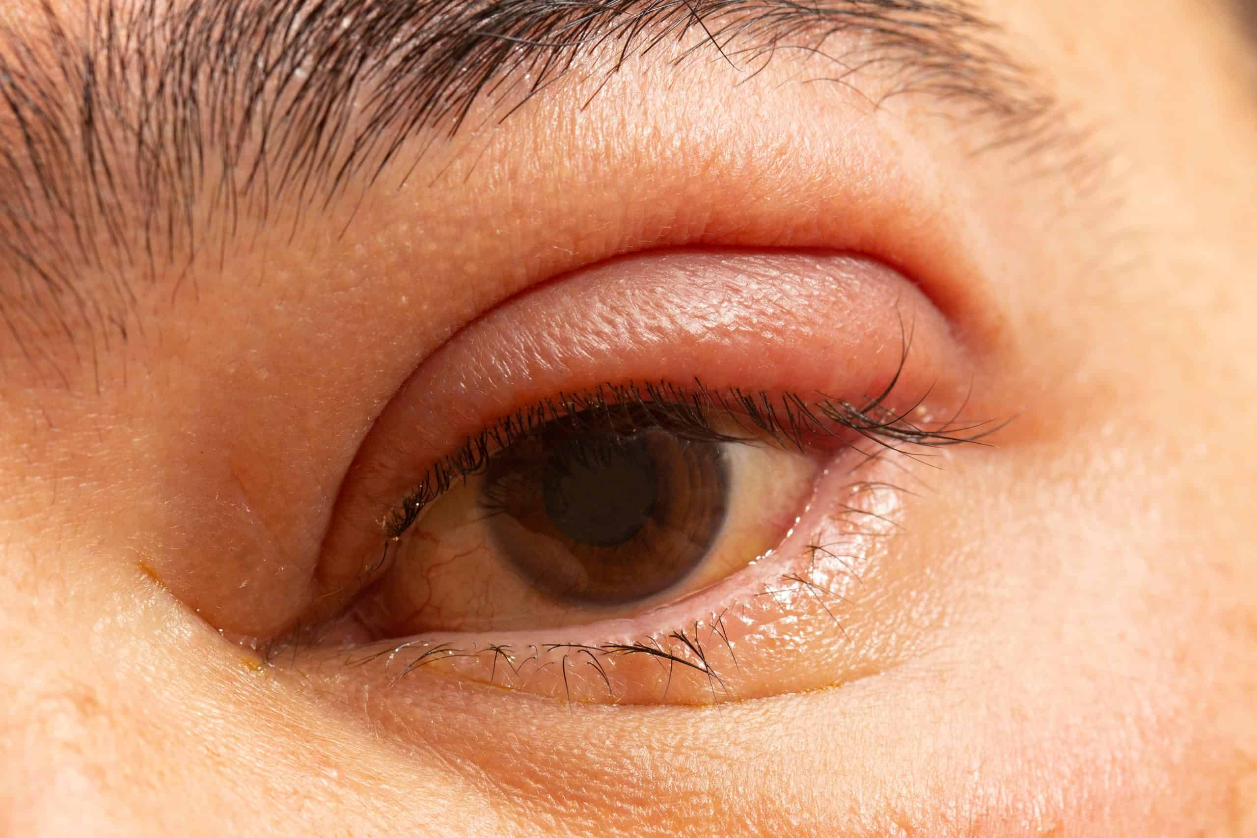 Managing Eyelid Inflammation Hartford