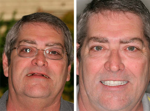Dentures patient before & after at Sonoma Smiles serving Santa Rosa
