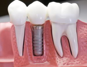 Traditional Dental Implant Procedure