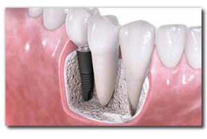 Dental Implants Placement for Santa Rosa & Petaluma