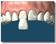 Porcelain veneer Placement for Santa Rosa Patients