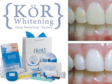 KoR Whitening Deep Bleaching System
