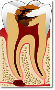 Teeth stains & bleaching offered to Santa Rosa