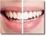 Before & after Sonoma Smiles teeth whitening